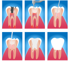 Root canal Ringwood